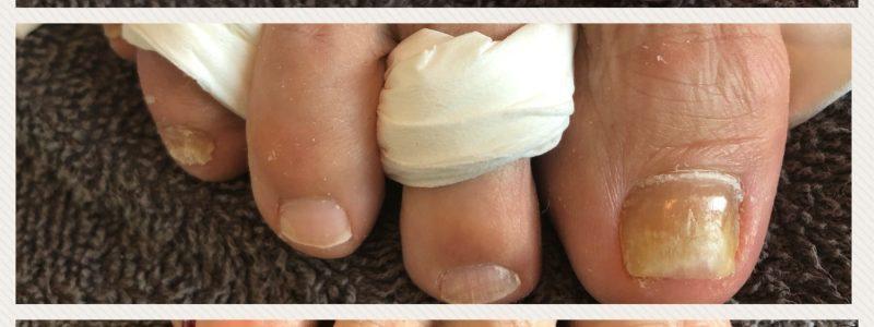 nagelreparatie-gelacy