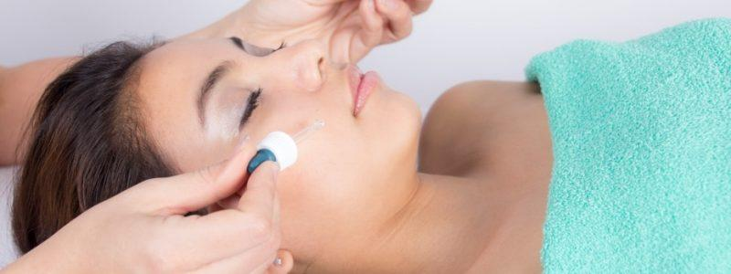 acne-behandeling-purmerend